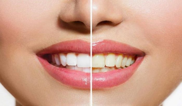 5 Tips To Avoid Stained Teeth